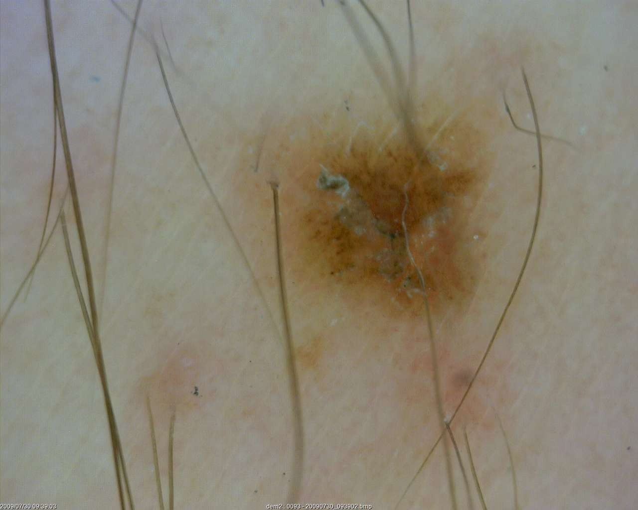 dermatology_11_1
