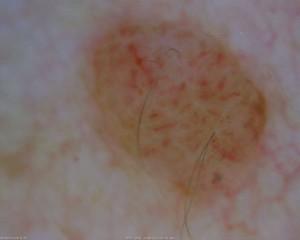 dermatology_19_1