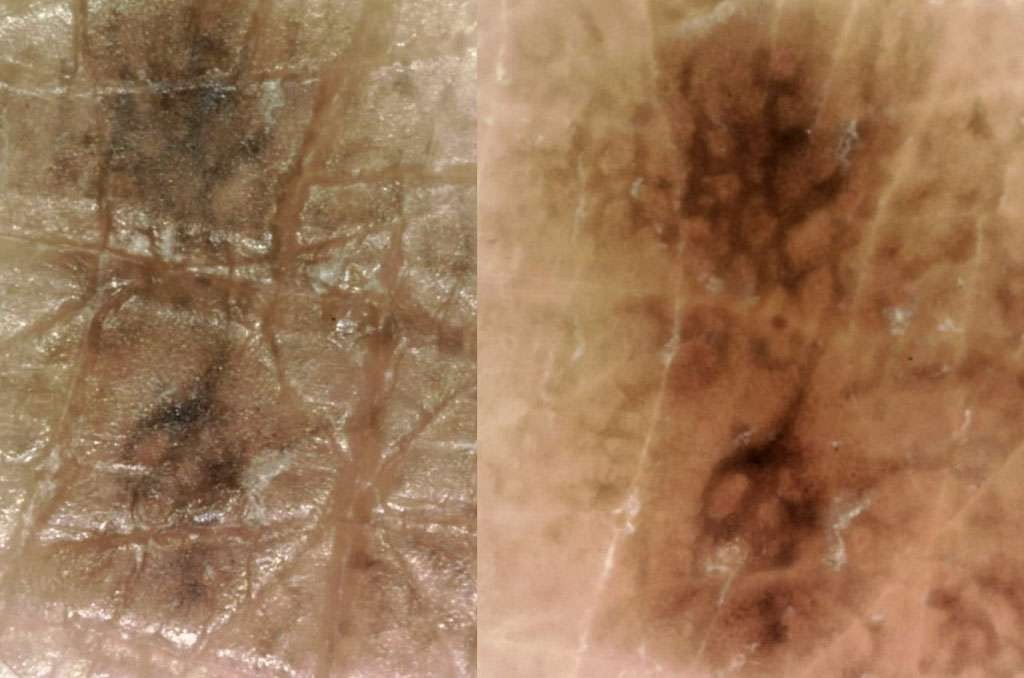 dermatology_22_1