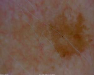 dermatology_32_1