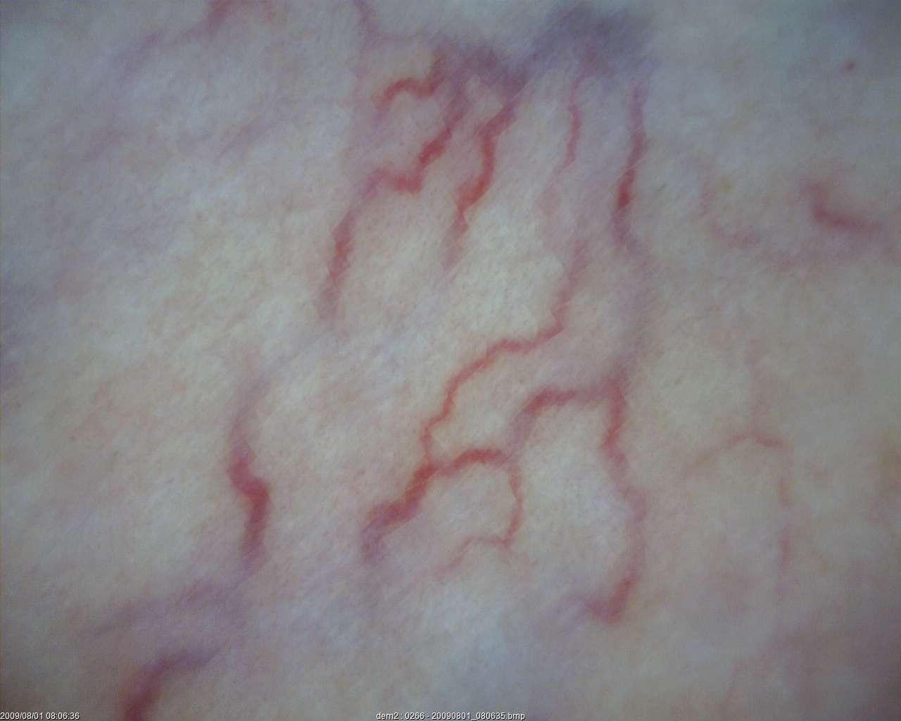 dermatology_37_1