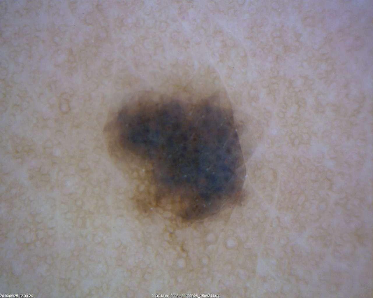 dermatology_39_1